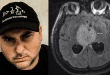 """Photo of Obywatel D.C. ma złośliwego guza mózgu: """"Generalnie RIP"""""""